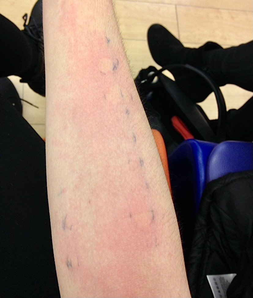Hannah's allergy prick test